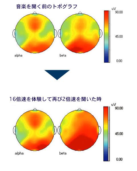 超高速モーツァルト速聴CD体験後脳波測定